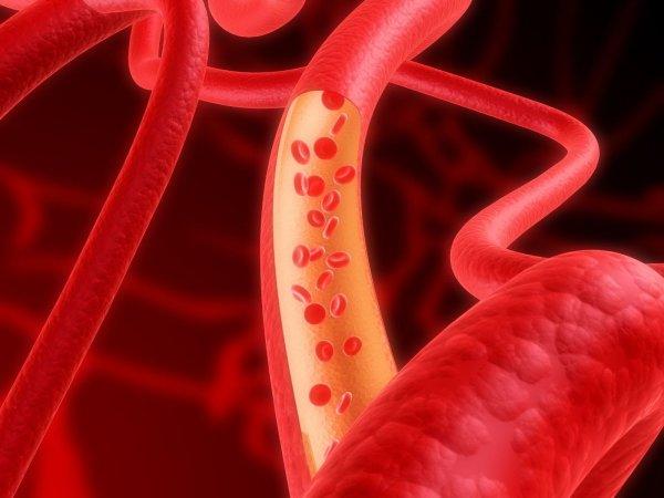 Ученые нашли способ минимизации повреждения кровеносных сосудов при диабете