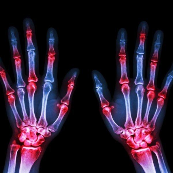 Ученые представили первый в мире цветной 3D-рентген