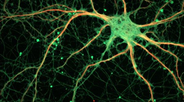 Учёные нашли поддерживающие сознание нейроны