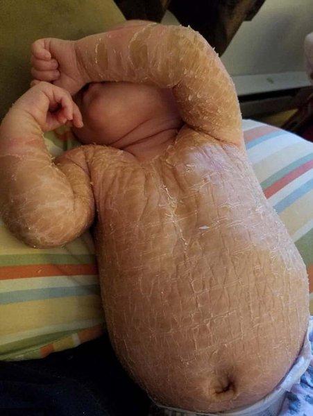 Мать купают свою годовалую дочь в отбеливателе, потому что ее кожа похожа на змеиную чешую