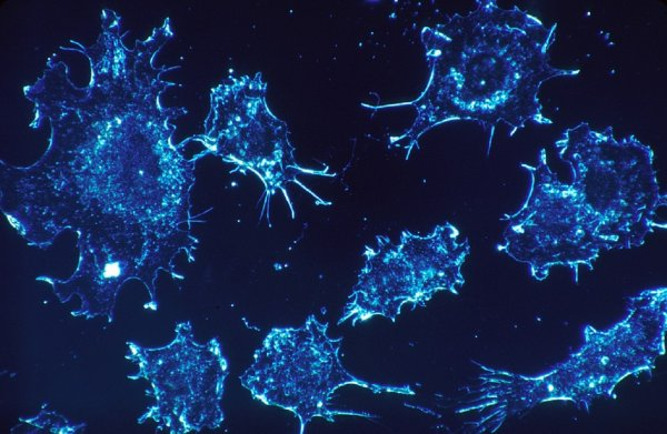 Ученые создали усыпляющее раковые клетки вещество