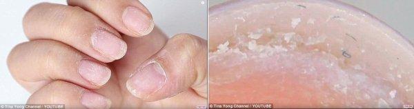 Эксперты: Химические вещества в акриловых и гель-лаках вызвали эпидемию аллергии