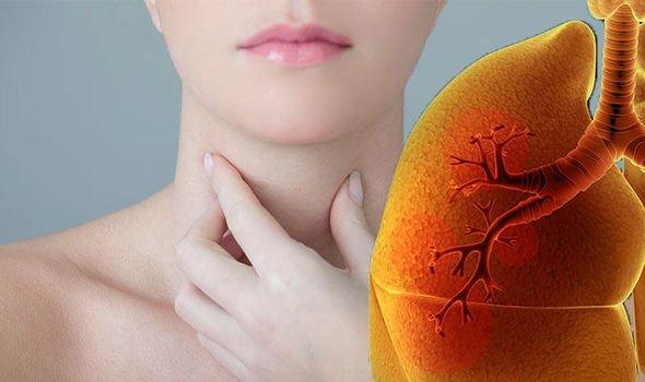 Ученые: Хрипота в голосе может являться симптомом рака легких