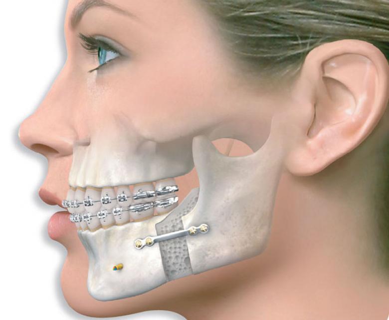 Ортогнатическая хирургия – начало успеха или конец страданиям?
