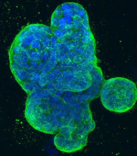 Учёные выявили белок, препятствующий распространению метастаз при раке груди