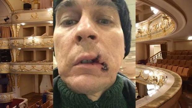 В Екатеринбурге оперный певец порвал рот во время спектакля