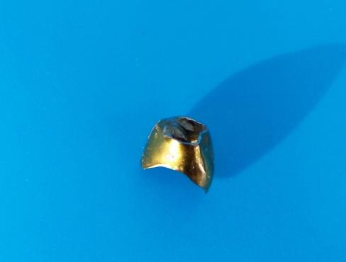 Вдохнул и не заметил: медики извлекли из легкого пожилого тюменца золотую зубную коронку